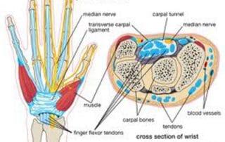 sindrome del tunnel carpale in gravidanza