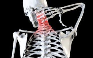dolore cervicale e lombosacrale