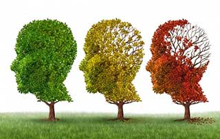 Neurologia Roma: Diagnosi e Terapia dell'Alzheimer