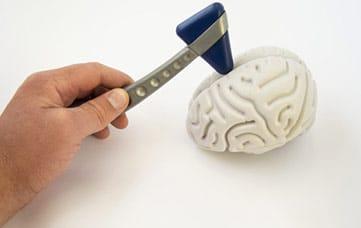 Neurologia Roma: Diagnosi Altre Patologie Neurologiche